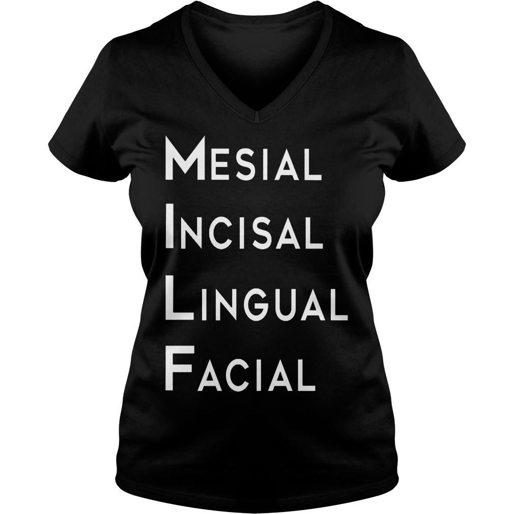 Mesial Incisal Lingual Facial V Neck
